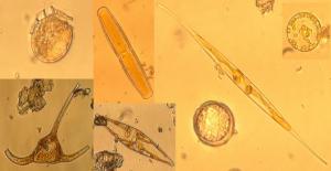 Phytoplancton under the microscope (Foto: Clara Hoppe)